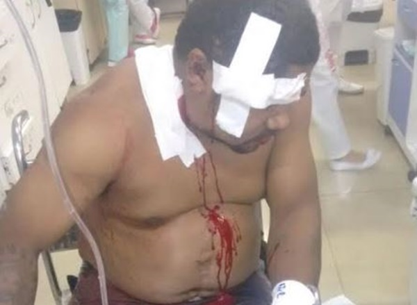 PAÇO DO LUMIAR/MA – Sogro de coronel da PM é assassinado após reagir a assalto em Paço do Lumiar.