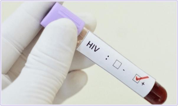 BRASÍLIA – Remédio que previne contaminação pelo vírus da Aids será oferecido pelo SUS.