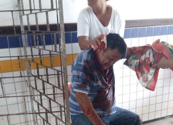 São Luís/MA – Urgente! Bandidos assaltam escola e esfaqueiam diretor