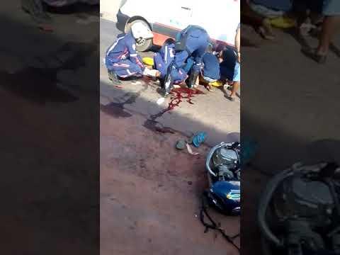 Codó/MA – Acidente grave parte moto ao meio e deixa dois feridos