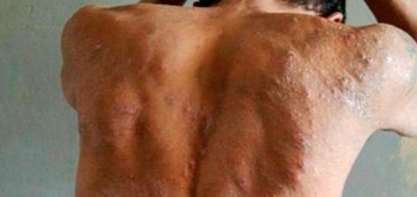 """Identificada a doença que """"devora a pele"""" dos presos de Roraima"""